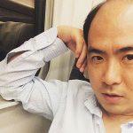 LINEニュースが発表wトレンディエンジェルの斎藤さんの抜け毛の数が明らかにw